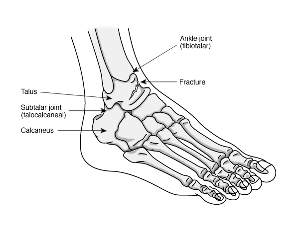 Tumour In Foot May03