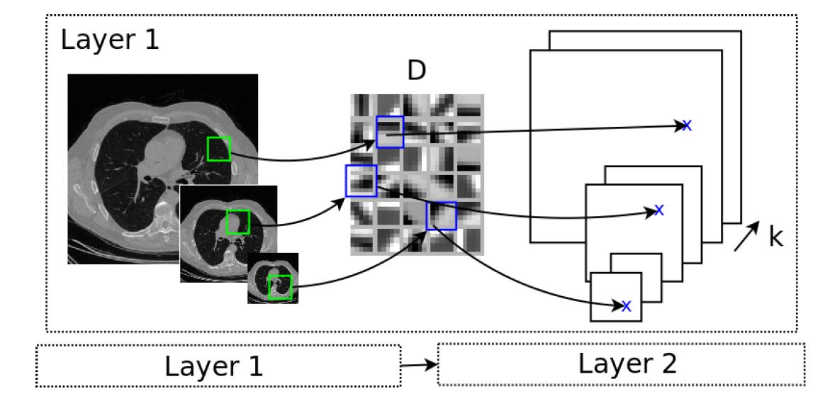 Deep learning for medical image segmentation